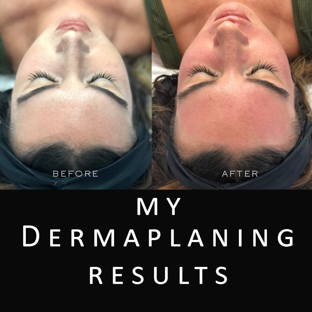 my dermaplaning results
